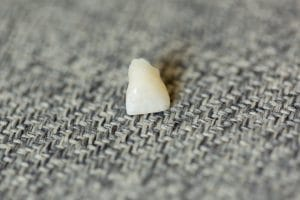 What Steps Should You Take After Tooth Loss?