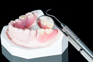 Close up, Artificial removable partial denture or temporary partial denture on black ground.