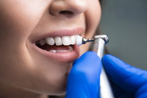 process of using stomatological brush as a stage of professional dental cleaning procedure in clinic close up.