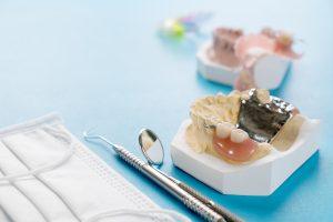 Removable partial denture (RPD.) on blue background.