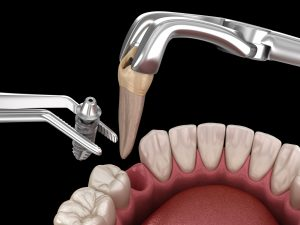 Extraction and Implantation, complex immediate surgery. Medically accurate 3D illustration of dental treatment