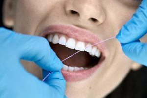 Delightful girl in a dental clinic. Dentist in blue latex gloves is flossing her teeth with a help of a dental floss. Closeup horizontal photo.
