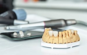 Artificial jaw with veneers and crowns, medical instrument. Making prostheses in a dental laboratory.