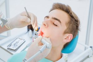 Dental caries prevention.Teenage boy at the dentist's chair during a dental procedure, smile close up. Healthy Smile. Beautiful male Smile
